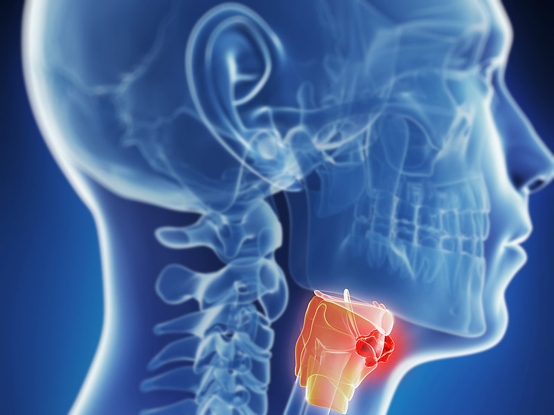 headt and neck cancer treatment