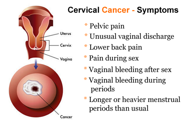 Ovarian Cancer Treatment in Pune