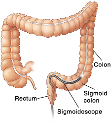 colon cancer treatment in pune